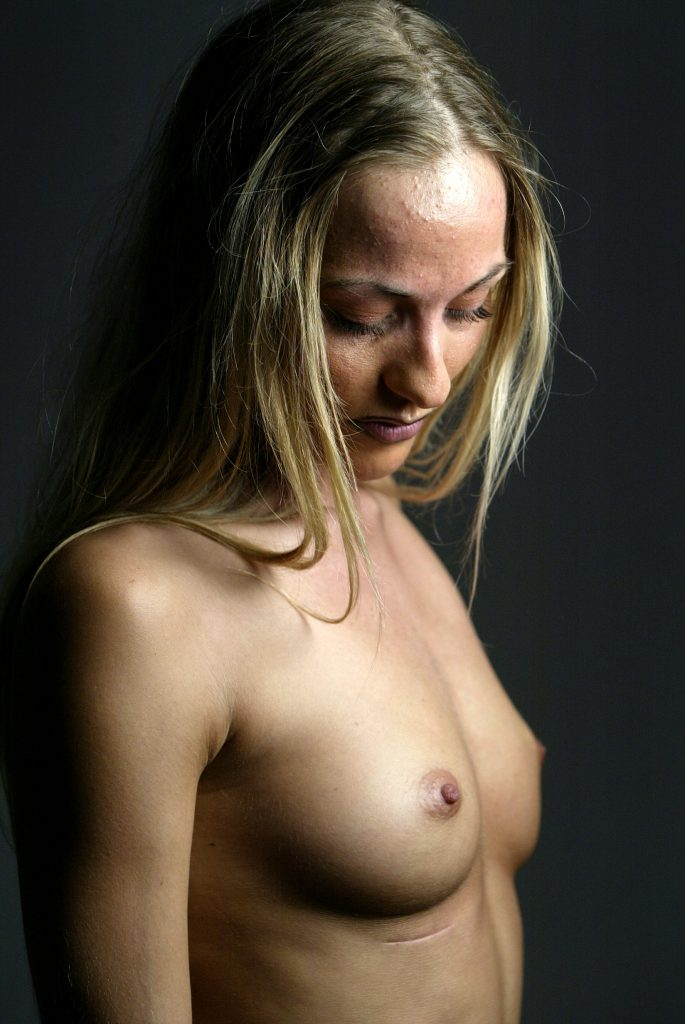 Stripperen Tiki sagsøger skandalekirurgen Jørn Ege, efter hendes brystimplantater punkterede. Stripperen Tiki, som hun ser ud i dag, vil anlægge civilt søgsmål mod skandalekirurgen Jørn Ege, der opererede hendes bryster større i 1998.