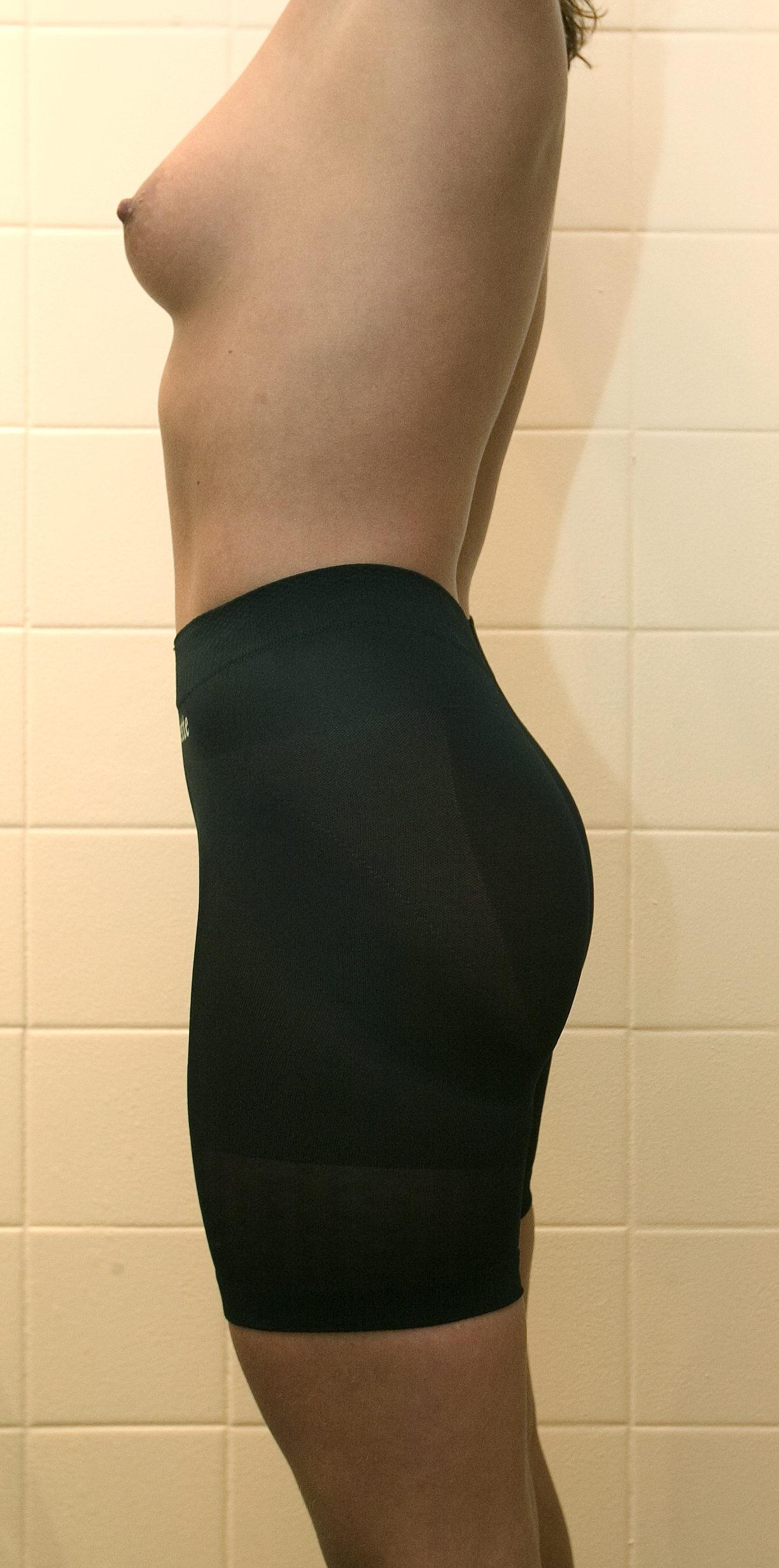 Snyd dig lækker: Klistermærker og andre sjove sager gør underværker for din sexappeal Modellerne har 'snydt' længe -de bliver ganske simpelt tapet op. Om nødvendigt, forstås. Men nu er der også hjælp at hente for os almindelige dødelige. Ved hjælp af lidt klister, silikone og elastik er det enkelt at snyde sig til at fylde kjolen lidt pænere ud. Vel at mærke uden at skulle skære andre steder end i banksaldoen.
