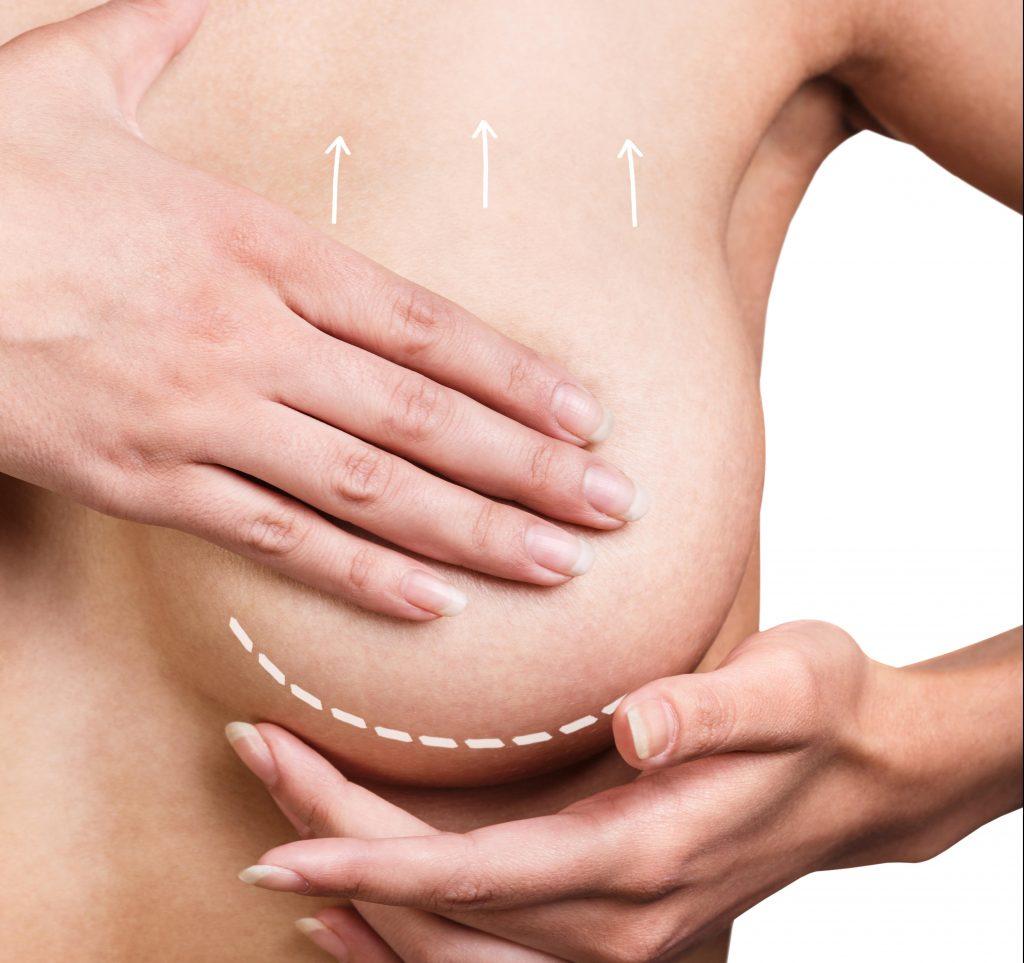 aleris-hamlet, plastikkirurgi, silikone bryster, brystforstørrende operation, bryster, kroppen, krop, kvindekroppen, kirurgi, bodyimage, botox