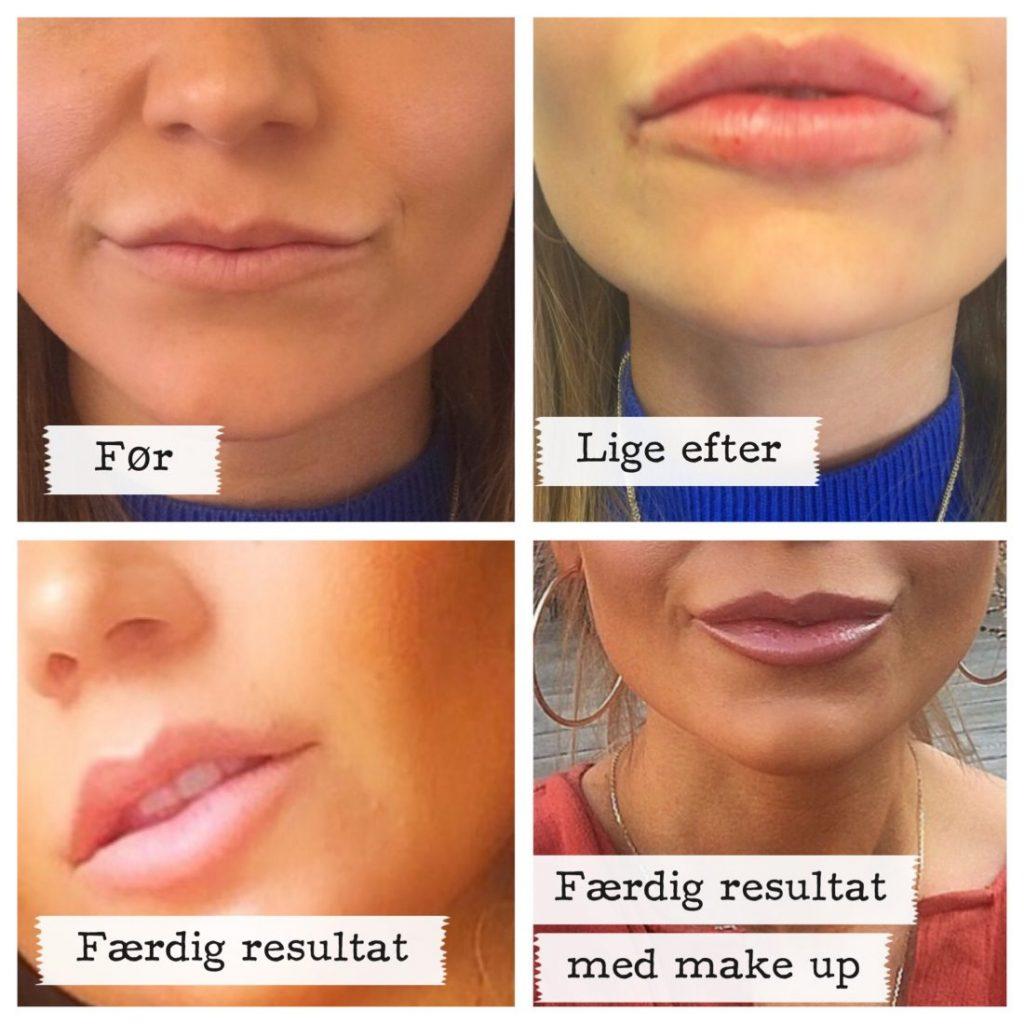 josefine valentin, blogger, blog, skønhed, kvinde, kvindekroppen, skønhedsbehandlinger, behandlinger, indgreb, plastikkirurgi, kosmetisk behandling, kosmetik, restylane, botox, privathospitalet aleris-hamlet, aleris-hamlet, læber, rynker, ungdom, udseende, selvværd, selvtillid, lip fillers