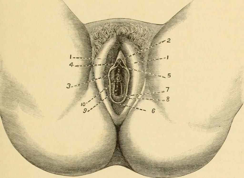 """Billede fra bogen """"A system of gynecology"""" (1887). (Foto: Internet Archive Book Images via Visual Hunt / No known copyright restrictions)"""