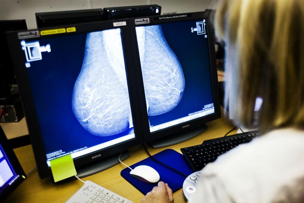 mammografi, brystkræft, brystcancer, cancer, undersøgelse, læge, sjusk, lægesjusk, viborg, randers,