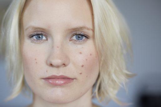 ung kvinde med modermærker