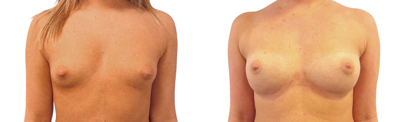 brystforstørrelse med eget fedt bra typer