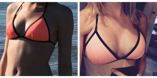Lenas bryster før og efter indgrebet. (Foto: Privat)