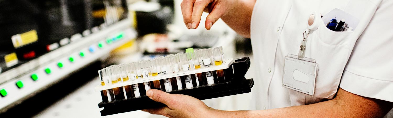 hiv, hiv-behandling, aids, behandling, sundhed, sygdom, kroppen, danmark, danskere, aids