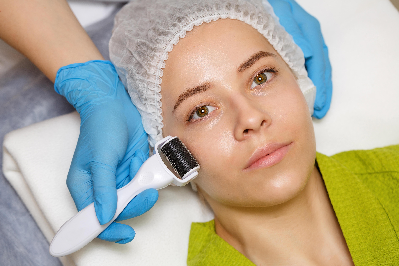 dermaroller, hudpleje, kosmetolog