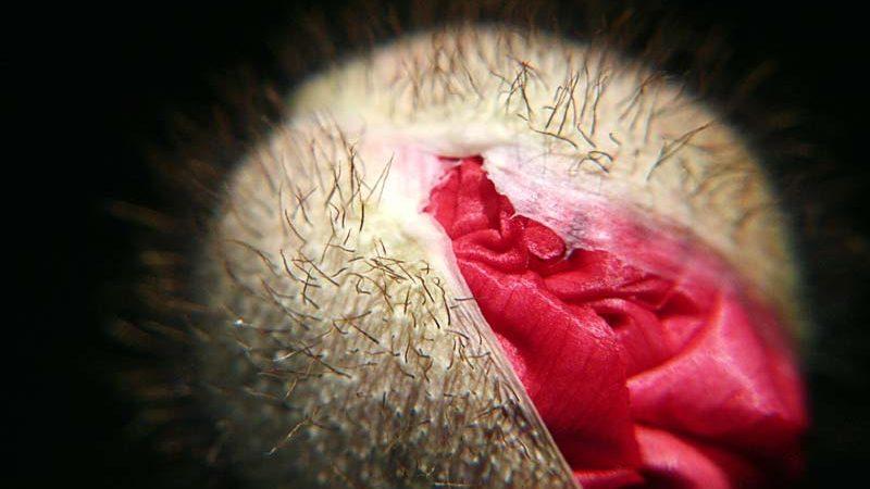 vagina, Photo credit: gwen via VisualHunt.com / CC BY-NC-ND