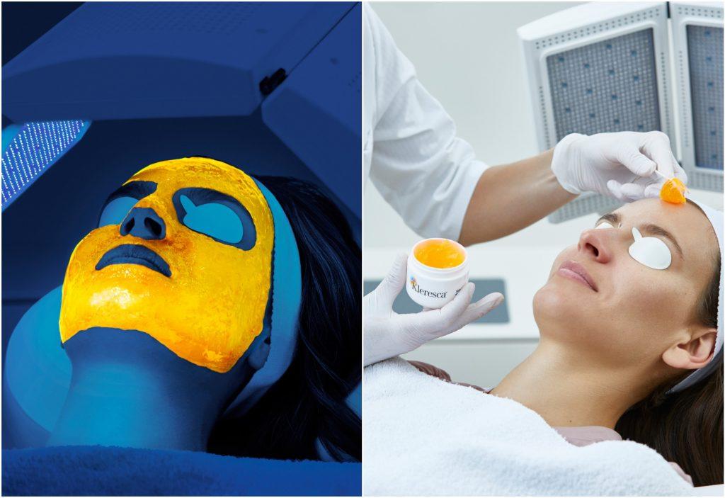 klaresca ansigt ansigtsbehandling akne