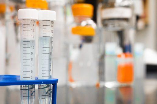 hormon, hormonforstyrrende, stoffer, forskning, kemikalier, kemi, forsøg, videnskab, læge, syg, sygehus, hospital